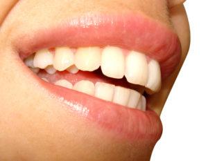 amit érdemes tudni a fogkő eltávolításáról